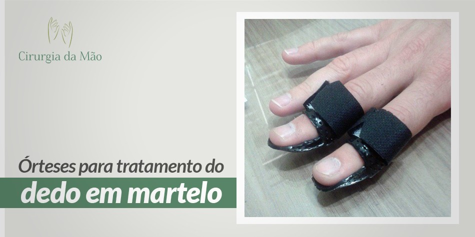 banner-tratamento-dedo-martelo-cirurgia-das-maos-2