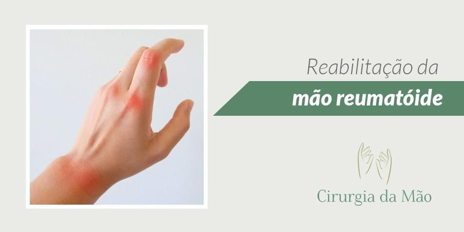 reabilitacao-mao-reumatoide