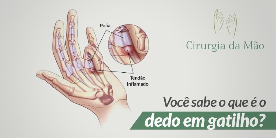 banner-dedo-em-gatilho-cirurgia-das-maos-v2